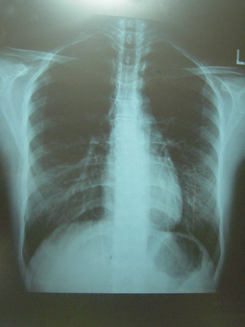 右の肋骨が痛い!咳が続くけど何で?3つの原因とは!?